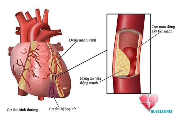 Tăng gánh nặng cho tim 1