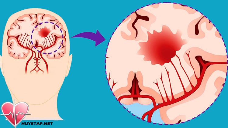 Cơn cao huyết áp đột ngột nguy hiểm như thế nào? 1
