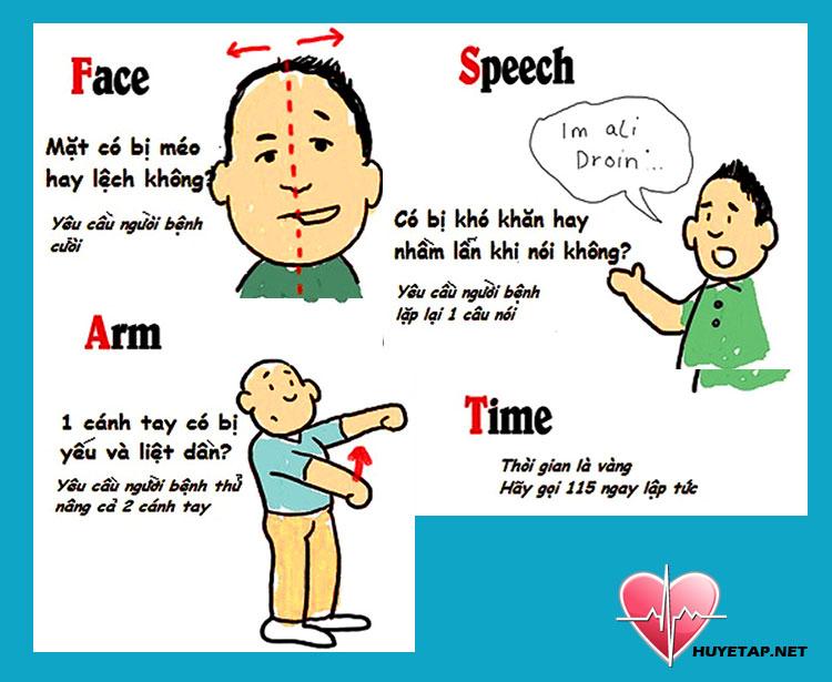 Nhận diện người bệnh đang lên cơn cao huyết áp đột ngột 1