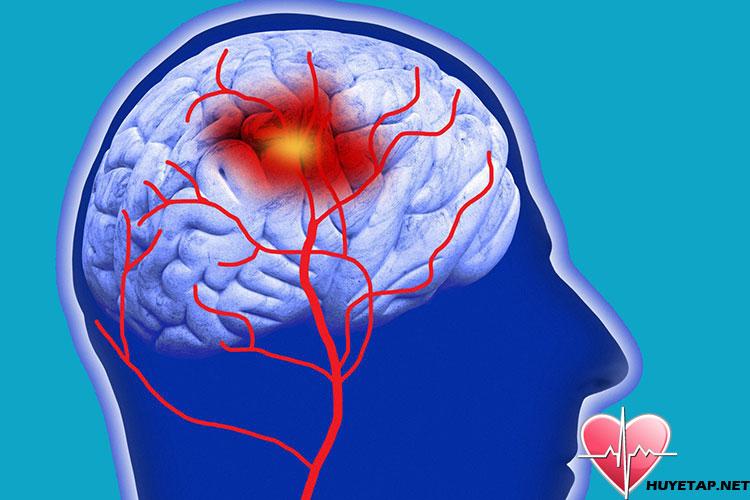 Phân biệt giữa cơn cao huyết áp đột ngột và tăng huyết áp cấp cứu 1