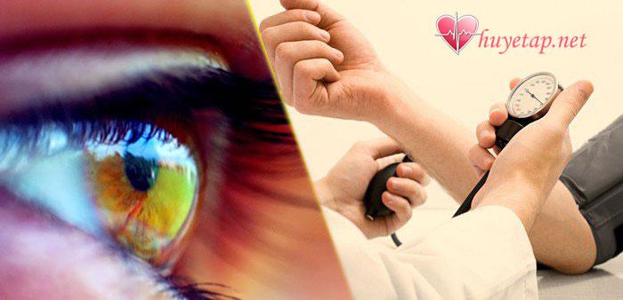 Vấn đề về thị lực 1
